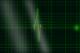 Ecg grafiek e1562849987758 80x53